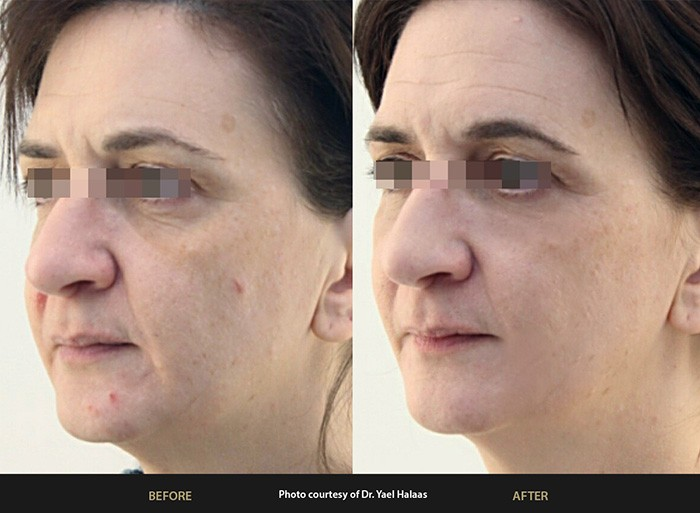 BeautiFill Before and After
