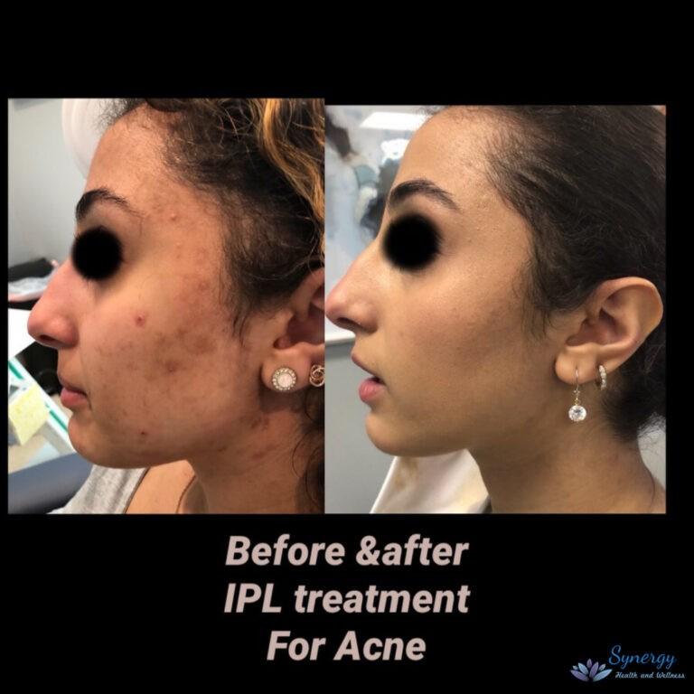 ba-ipl-acne