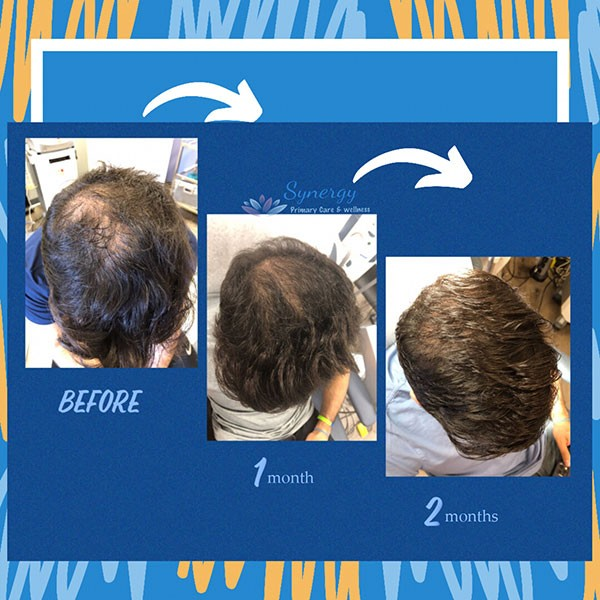 hair-restoration-before-after